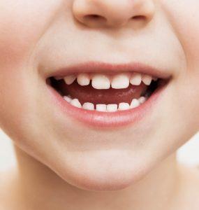 primary-teeth